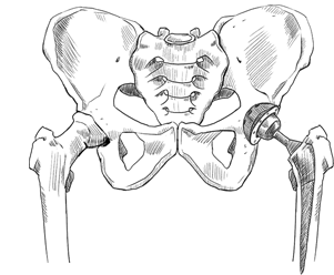 Illustration of a skeletal hip with hip replacement