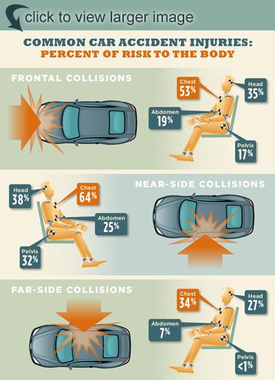 Car Crash Injuries & Statistics