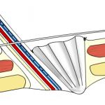 hernia mesh implant recall