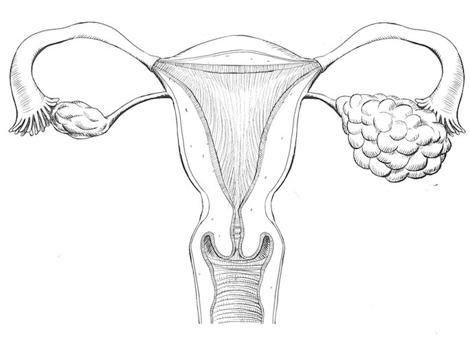 Uterus with Ovarian Cancer from Talc Powder