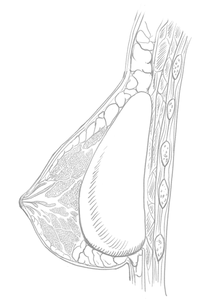 Illustration of Implant in Breast
